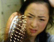 头发掉得厉害是什么原因?用药OR植发
